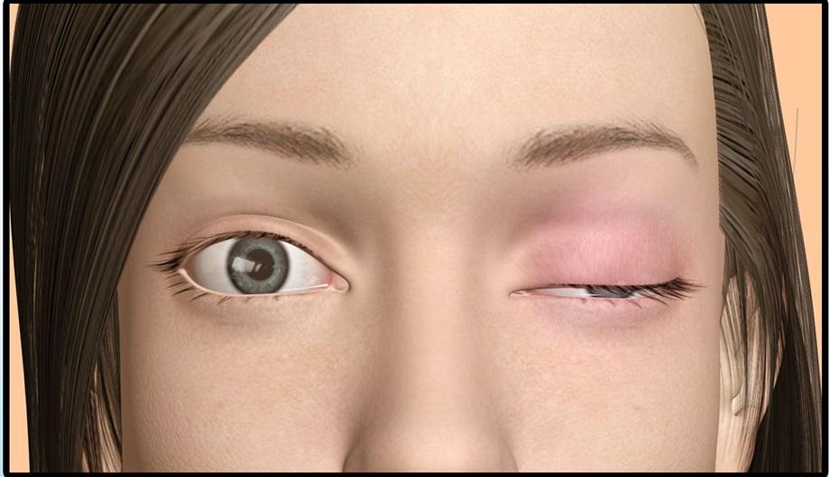 2. Sụp mí mắt do cơ 1
