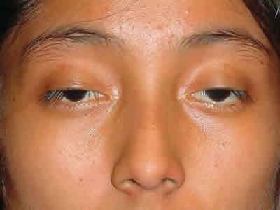 Phân loại sụp mí mắt 1