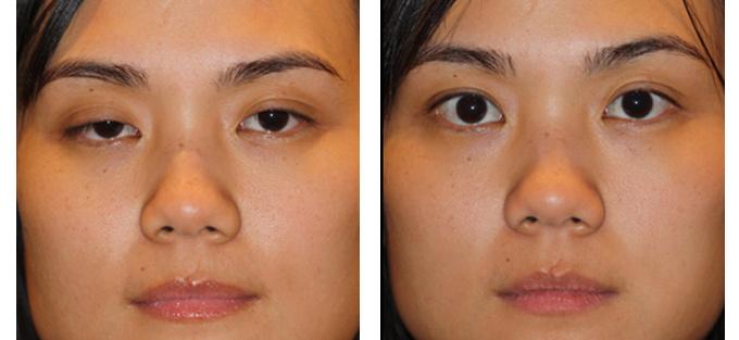 Sụp mí mắt  - Nguyên nhân có thể do nhược cơ 1