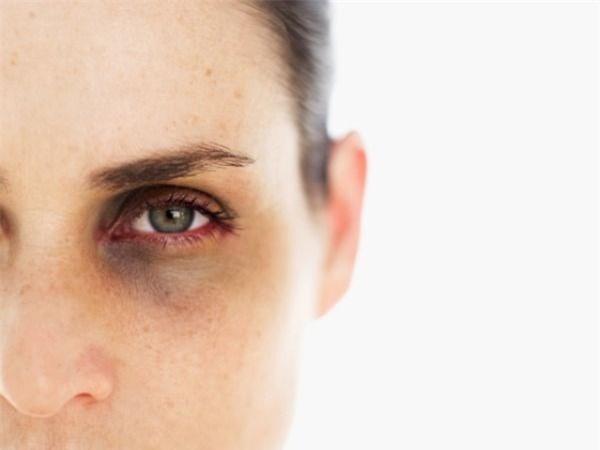 Nguyên nhân gây sụp mí mắt 1