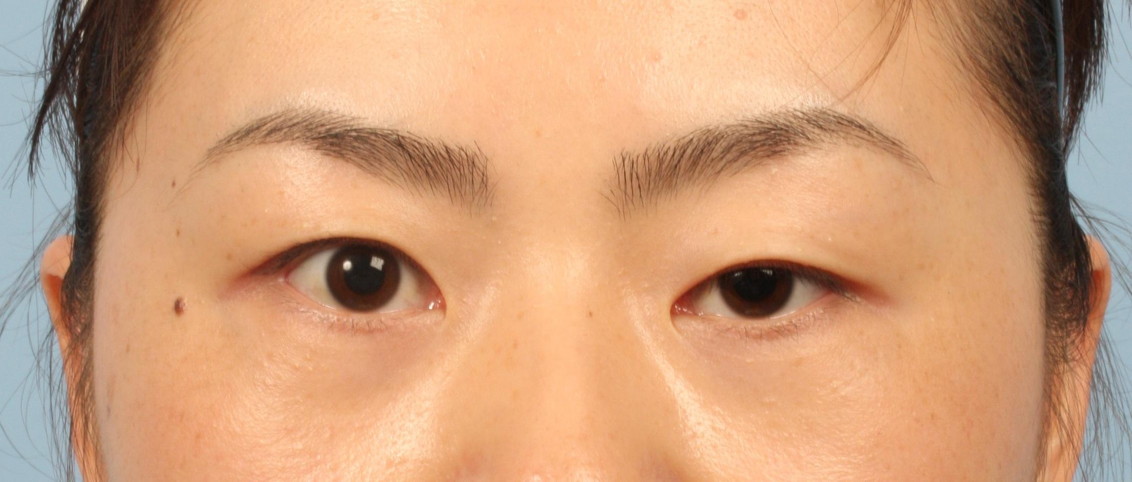 Làm thế nào để giảm sụp mí mắt? 1