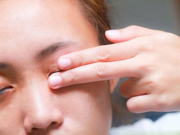 Sụp mí mắt - Nguyên nhân theo từng độ tuổi 1